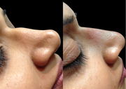 Get Non Surgical Nose Job Birmingham